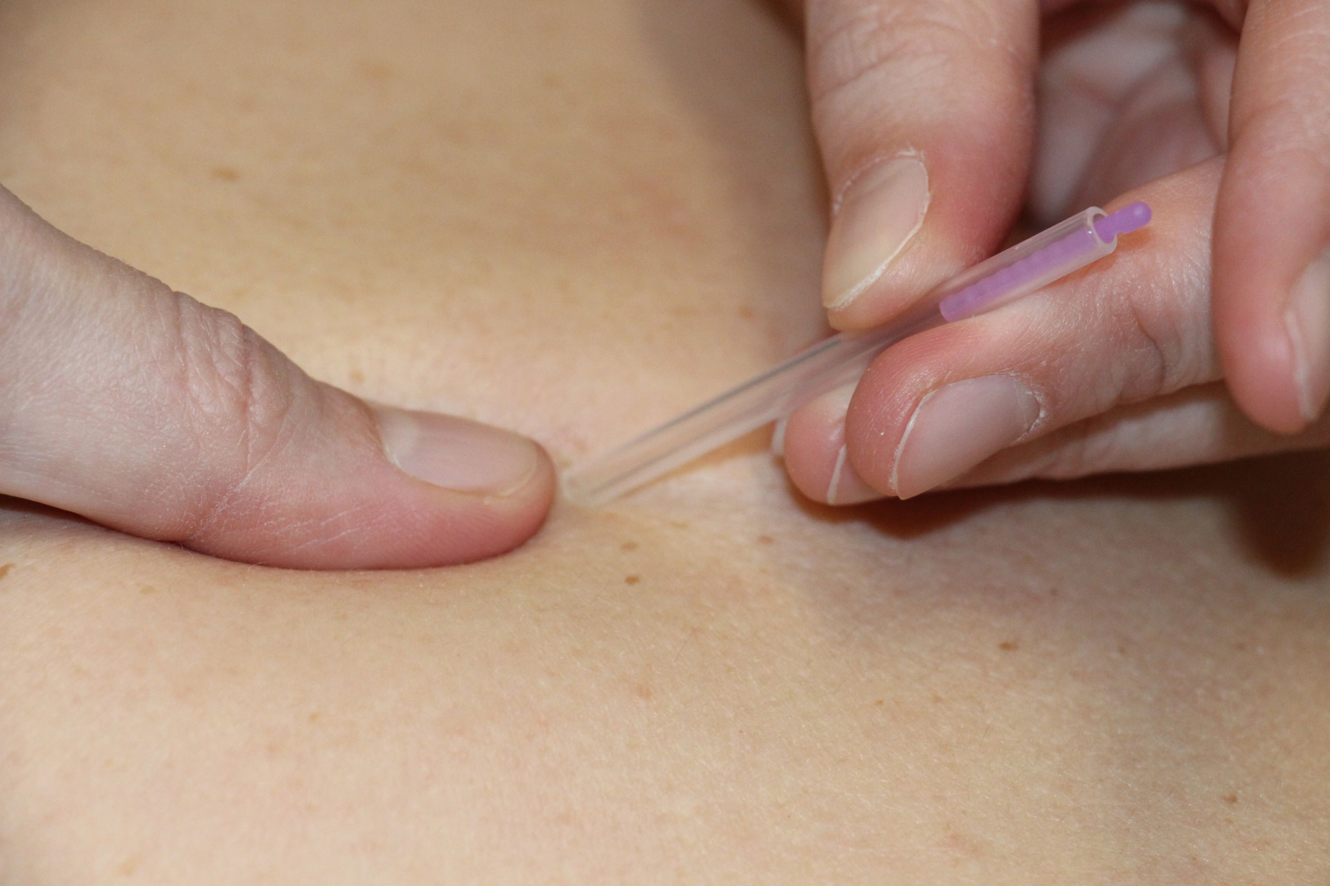 Dry Needling behandeling door Brigitte Dooren